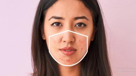 Sebal dengan 'maskne'? Ini 4 cara ampuh menghindari jerawat akibat pemakaian masker