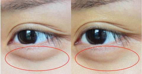 Eye Cream yang kamu pakai tidak bekerja? Mungkin kamu melewatkan 5 hal ini!